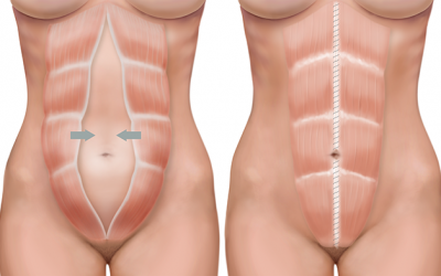 How to check if you have abdominal separation after pregnancy.